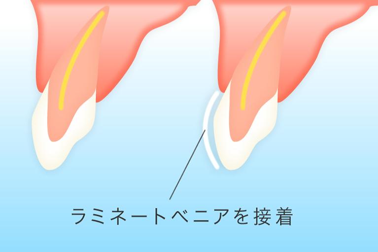 【ラミネートべニア】歯の表面に人工歯を貼り付ける治療法