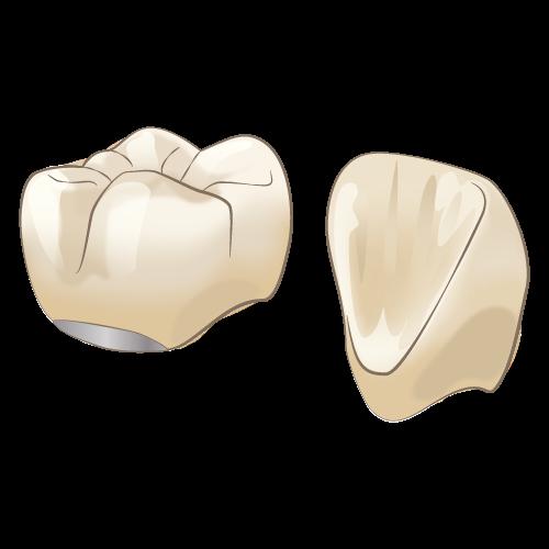 【エステニア】自然歯のように白く美しい歯
