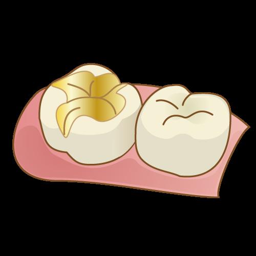 【貴金属~ゴールド・プラチナ】奥歯などの目立たない部位に