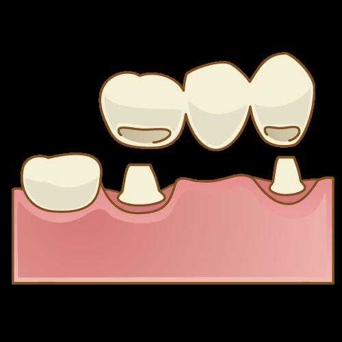 ジルコニア ブリッジ(1歯欠損 両隣歯2本支台3本ブリッジ)