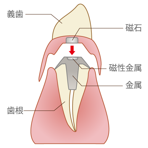 磁性アタッチメント(維持装置)